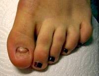 Nagelprothese vorher